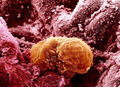 Выделения при имплантации эмбриона: обязательно ли должно быть кровяное пятно при прикреплении в матку, ощущения и признаки