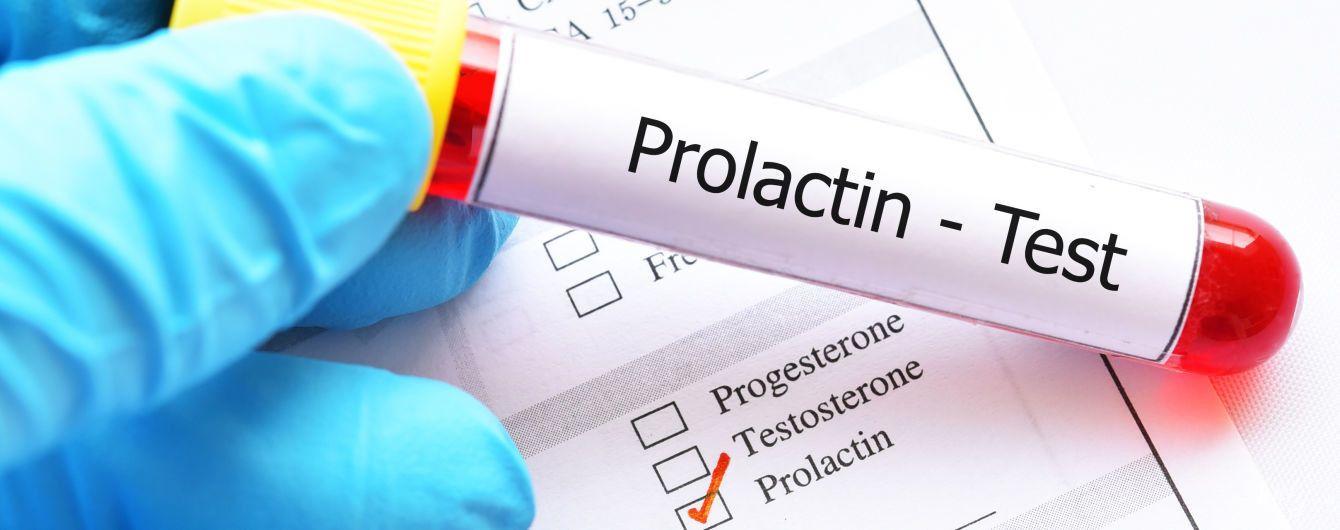 На какой день цикла сдавать пролактин и как правильно