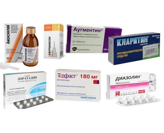 Список лучших антигистаминных препаратов для детей до года и старше