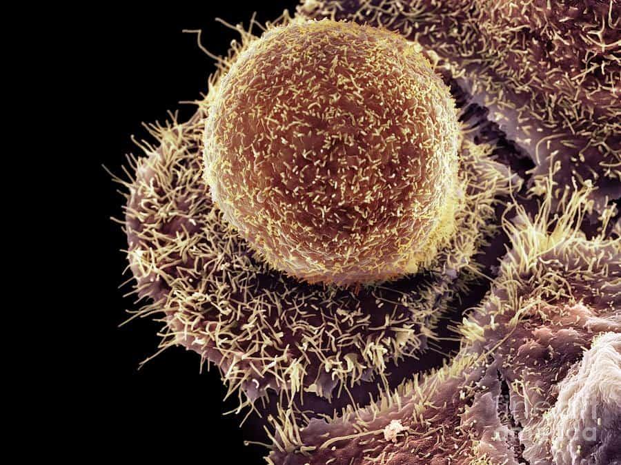 Хламидиоз у женщин при беременности: симптомы, лечение, профилактика