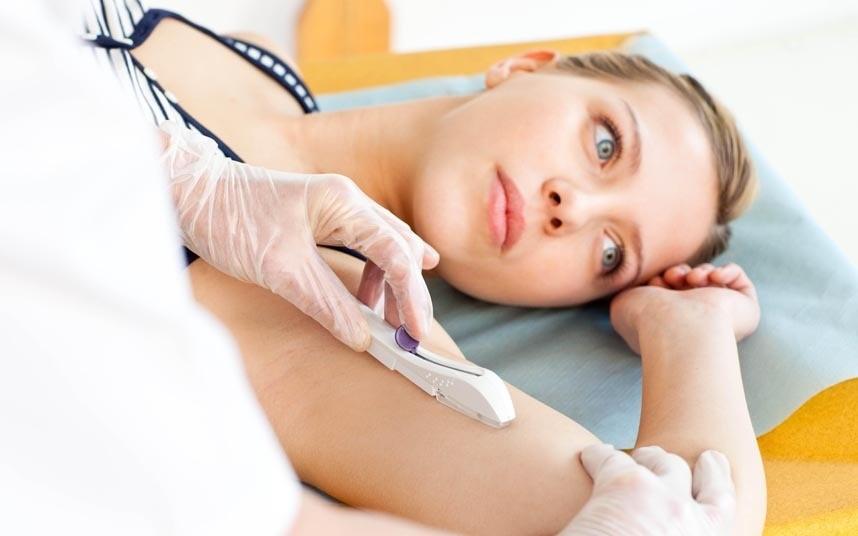 Противозачаточный имплантат- как это работает?
